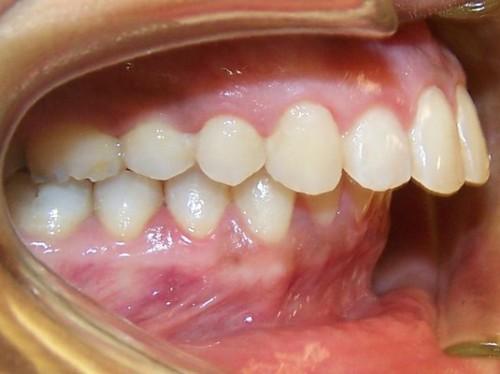 Các cách điều trị, chữa răng vẩu nhanh chóng, hiệu quả nhất