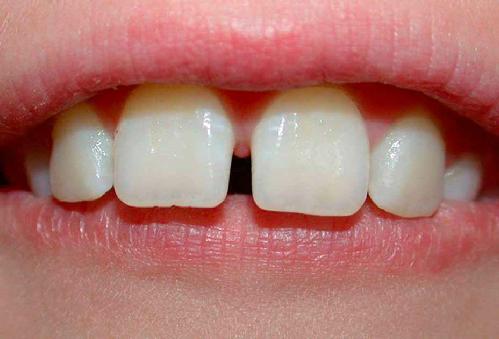 Răng cửa bị thưa phải làm sao để chữa trị – Bác sĩ giải đáp