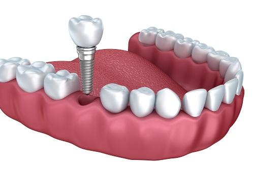 Làm răng giả cố định SIÊU BỀN và AN TOÀN 3