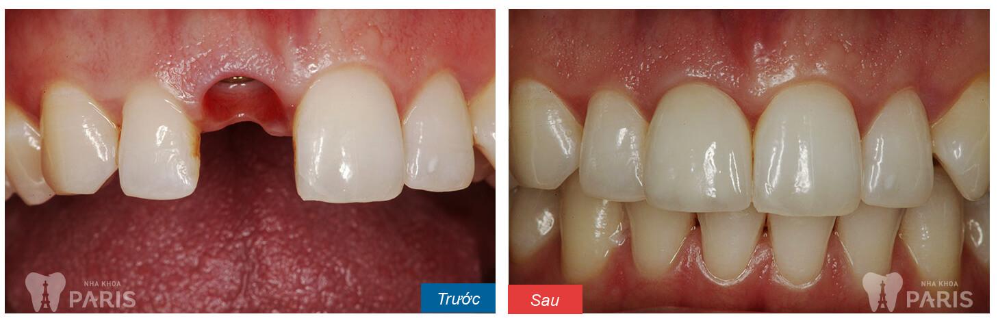 Răng giả tháo lắp loại nào TỐT NHẤT 2017? 5