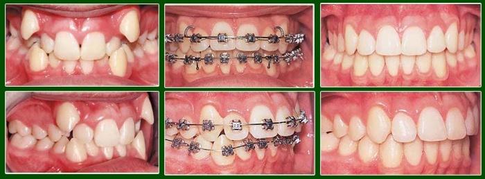 Niềng răng mắc cài 3M UGSL hiệu quả TRIỆT ĐỂ  4