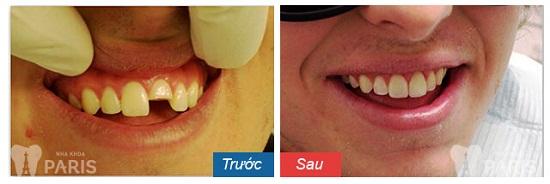 Trồng răng sứ mất bao lâu để hiệu quả TỐI ƯU? 2