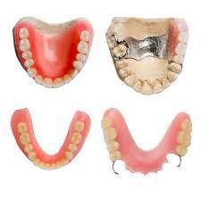 Răng giả tháo lắp loại nào TỐT NHẤT 2017?