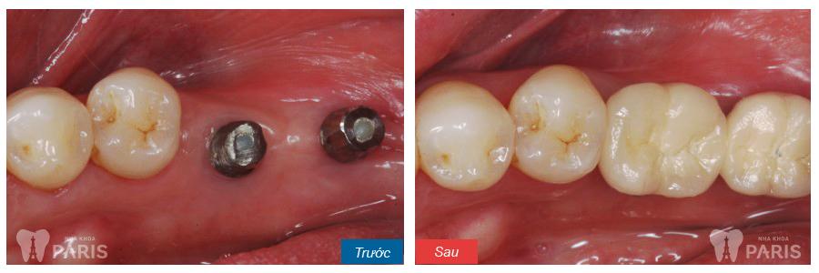 Trồng răng giả implant mất bao lâu thì hoàn thành?