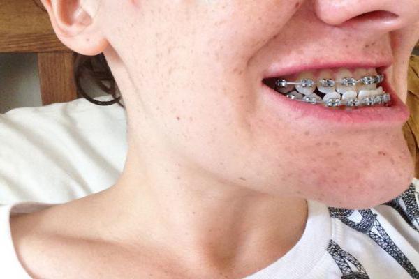 Niềng răng móm mất bao lâu là NHANH NHẤT?