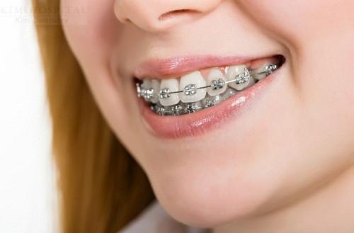 Thực hư niềng răng có HẠI cho sức khỏe không