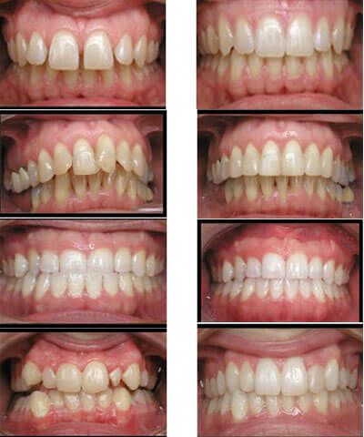 Niềng răng mắc cài 3M UGSL hiệu quả TRIỆT ĐỂ  8