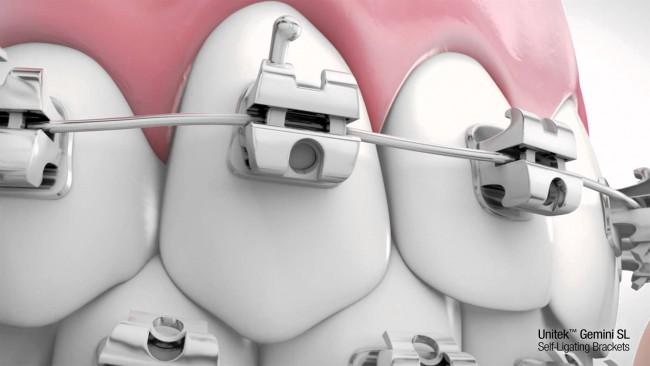 Niềng răng mắc cài 3M UGSL hiệu quả TRIỆT ĐỂ  3