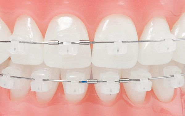 5 lý do bạn không thể bỏ qua niềng răng mắc cài sứ 1