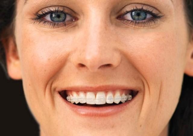 5 lý do bạn không thể bỏ qua niềng răng mắc cài sứ 2