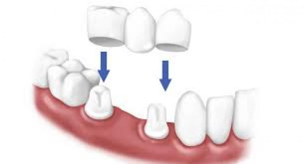 Làm răng giả cố định SIÊU BỀN và AN TOÀN