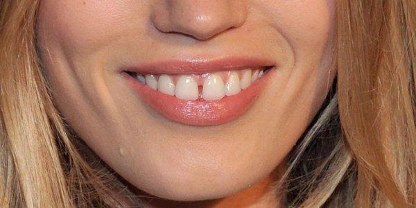 Cách chữa răng thưa TRIỆT ĐỂ sau 1 lần