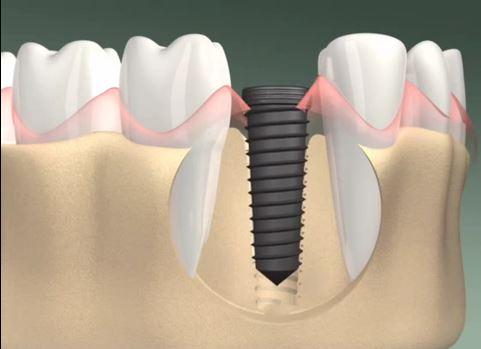 Cấy ghép răng Implant ở đâu TỐT và AN TOÀN nhất 2017? 1