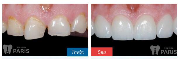 Cách làm răng hết ê buốt sau trám răng HIỆU QUẢ 100%