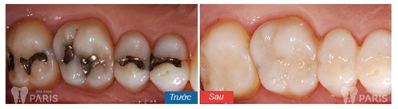 Cách chữa răng thưa TRIỆT ĐỂ sau 1 lần 2