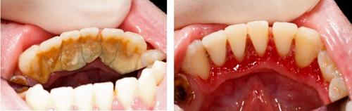 Những bệnh lý răng miệng liên quan đến cao răng