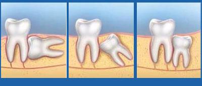 Răng khôn mọc trong bao lâu? Có nên nhổ răng khôn không?