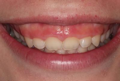 Nguyên nhân và phương pháp phẫu thuật chữa cười hở lợi