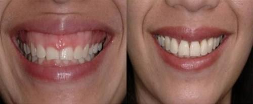 Nguyên nhân và phương pháp phẫu thuật chữa cười hở lợi 2