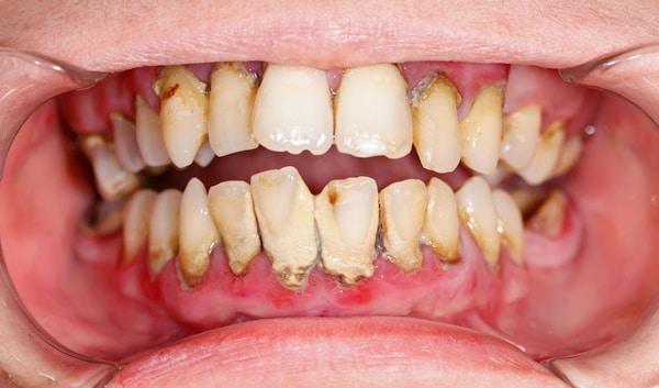 Chuyên gia chia sẻ: Những nguyên nhân răng bị vàng, xỉn đen