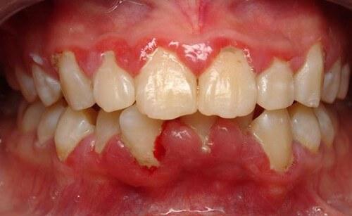 Làm thế nào để làm sạch mảng bám chân răng?