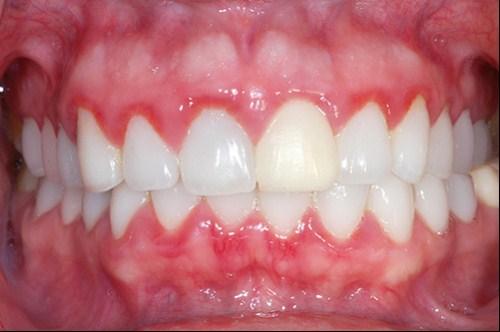 Tổng hợp 5 nguyên nhân đau răng thường gặp nhất