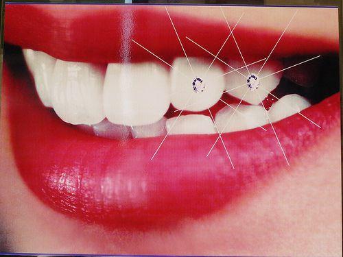Đính đá vào răng có hại không? Tư vấn của bác sỹ
