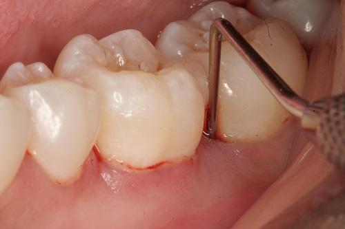 Những lưu ý khi lấy cao răng để đạt hiệu quả tốt nhất 3