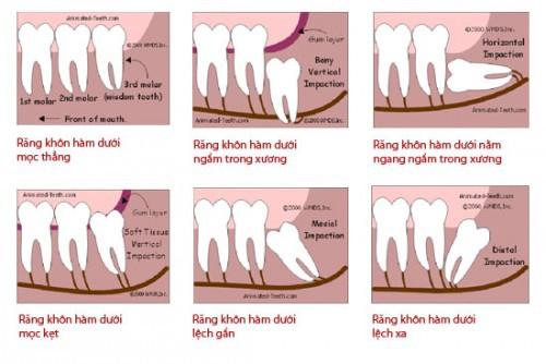 Nhổ răng số 8 có nguy hiểm không? 1
