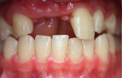 Viêm chân răng, những ảnh hưởng và cách điều trị dứt điểm 2