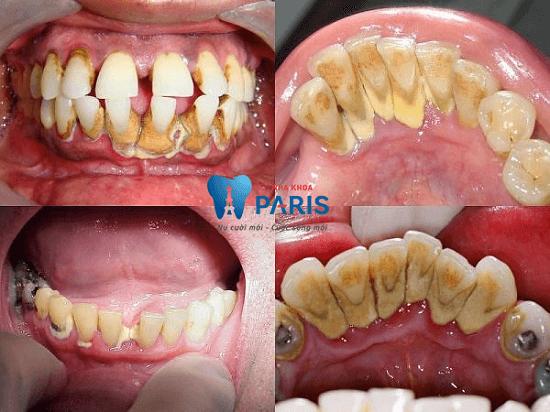 Lấy cao răng có hại không? Quá trình có đau không?