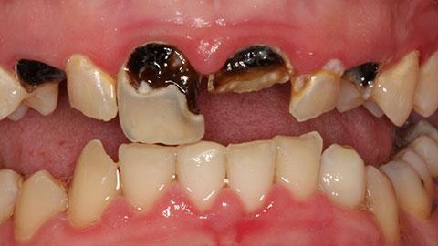 Sâu răng gây hôi miệng làm sao để chữa khỏi hoàn toàn 1