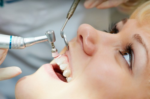 Lấy cao răng siêu âm và những điều cần biết 1