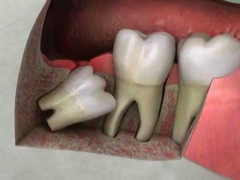 Nhổ răng số 8 có biến chứng  và nguy hiểm không?