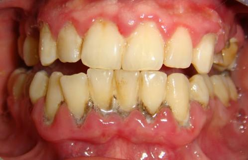 Khắc phục tình trạng viêm lợi gây đau nhức chân răng 1