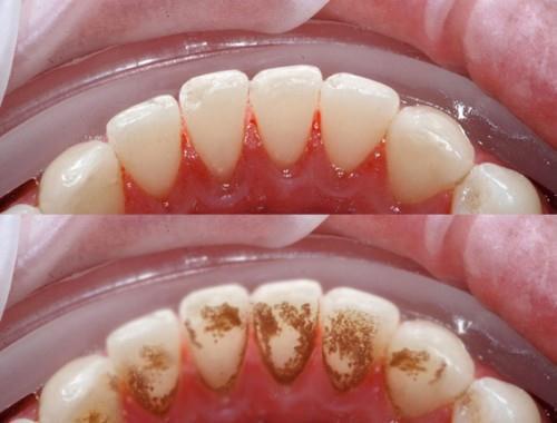 Lấy cao răng nhiều có làm hỏng men răng không? 1