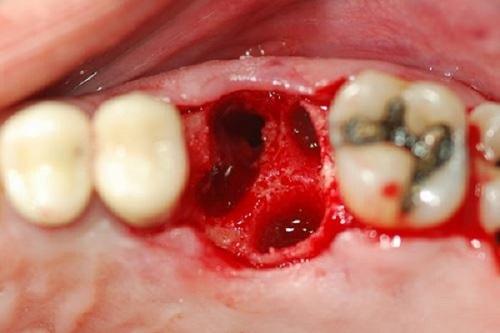 Chảy máu răng sâu nguy hiểm như thế nào?