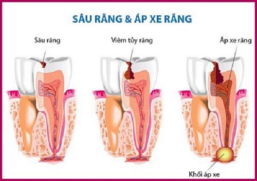 Cách điều trị và phòng ngừa áp xe răng hiệu quả nhất 2
