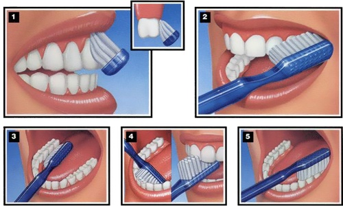 Tại sao răng bị ê buốt? Cách điều trị răng ê buốt tại nhà 3