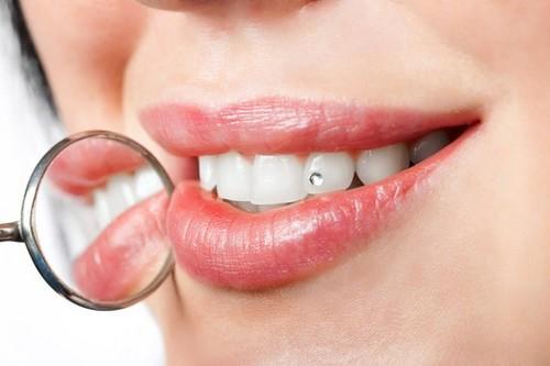 Dùng keo gì gắn đá vào răng để hiệu quả cao nhất?