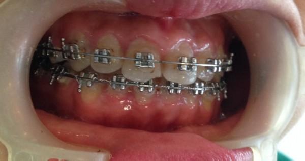 Răng lệch khớp cắn là gì và cách điều trị hiệu quả 2