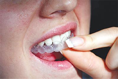 Tẩy trắng răng tại nhà - Hiệu quả cao mà chi phí lại thấp 3