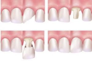 Có nên bọc răng sứ không? ĐƯỢC gì và MẤT gì? 2
