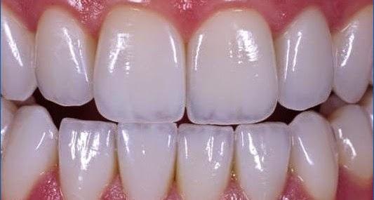 Bọc răng sứ - TUYỆT CHIÊU phục hình thẩm mỹ! 2