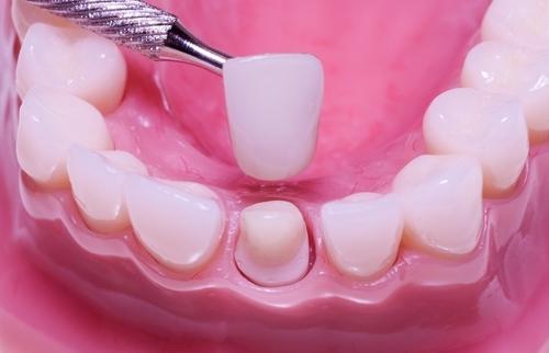 Bọc răng sứ – TUYỆT CHIÊU phục hình thẩm mỹ!