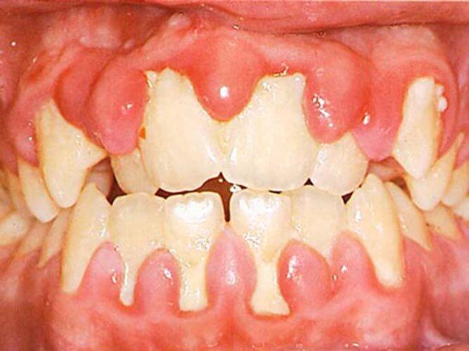 Cách làm trắng răng liệu có an toàn và hiệu quả không? 2