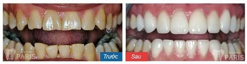 Cách làm trắng răng bằng muối và chanh hiệu quả an toàn? 2