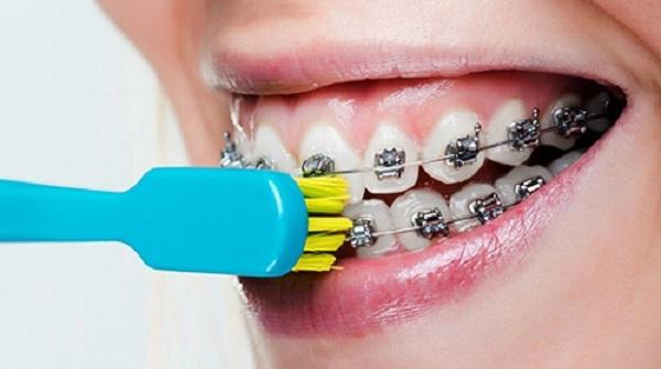 Quy trình niềng răng theo CHUẨN quốc tế như thế nào? 2