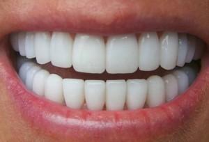Có nên bọc răng sứ không? ĐƯỢC gì và MẤT gì?