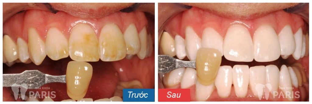 Cách làm trắng răng liệu có an toàn và hiệu quả không?